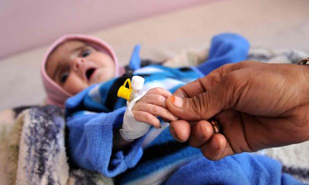 یمن میں ہیضے کی وبا.. ہسپتالوں میں ہنگامی حالت کی سطح بلند