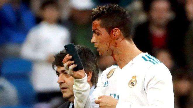 وہ لمحہ جب رونالڈو نے میدان میں موبائل پر اپنا زخمی چہرہ دیکھا