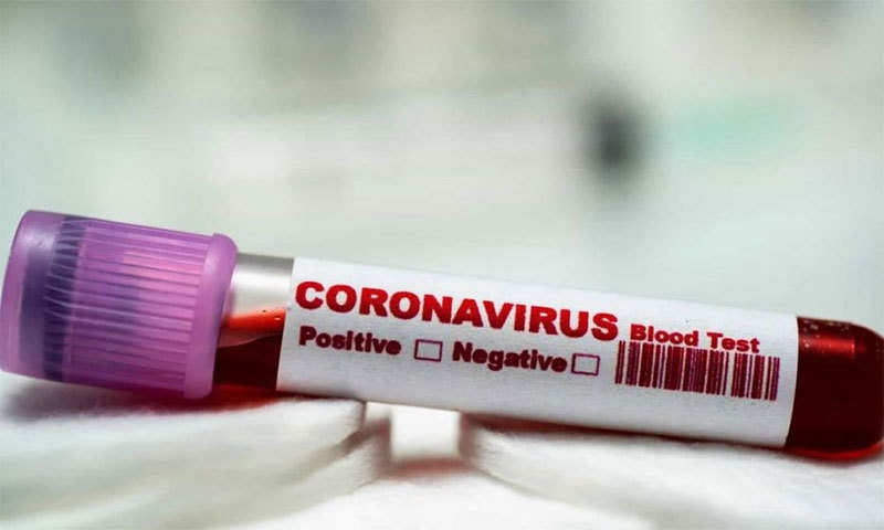 کورونا وائرس کا قہر اب بھی جاری- ٧ آسان طریقے اپنائے اور کورونا سے نجات پائے